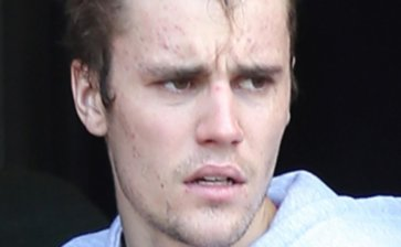 Entenda o que é a doença de Lyme, que acometeu Justin Bieber